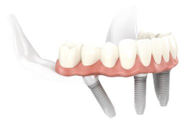 image of NobelImplant Bite Lock Teeth in a Day Dental Implant Process Dallas TX