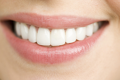 Woman smiling and thinking about clenching teeth and dental implants in Irving,TX
