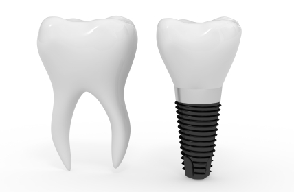 Mini Dental Implant Next to Molar, Mini Implant vs Dental Implants at BiteLock in the Dallas, TX area.