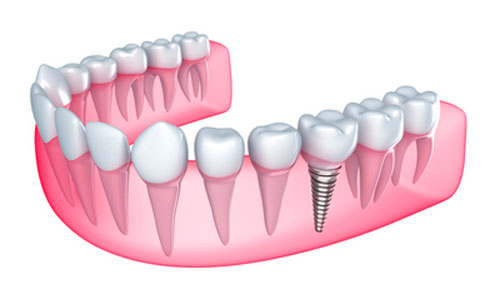 Virtual image of a dental implant offered at BiteLock in the Dallas, TX area.