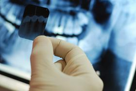 Doctor holding Dental xray at BiteLock