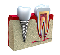 Diagram of dental implant in Irving,TX