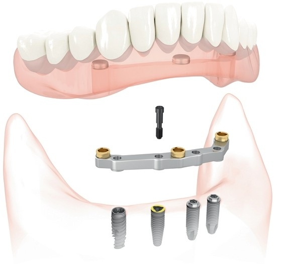 Dental implant and bite lock in Irving,TX